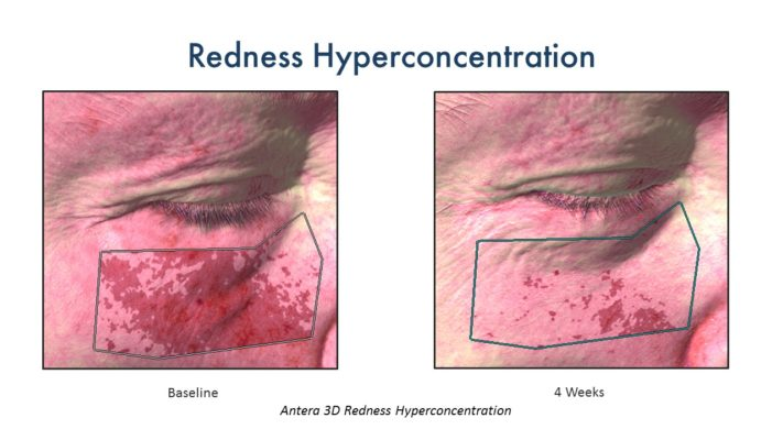 CerumWORX Results Redness