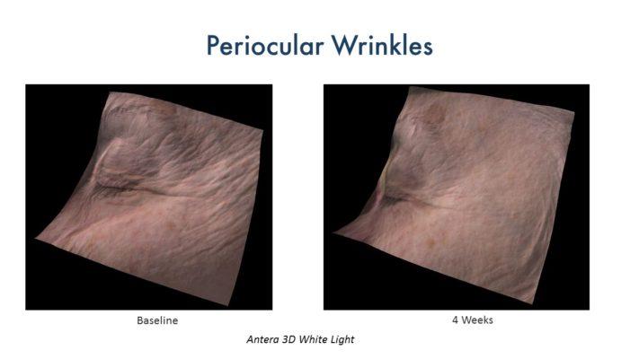 CerumWORX Results Wrinkles